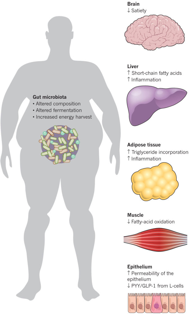 Obesità e cambiamenti nel microbiota intestinale - Gluten Free Travel and Living