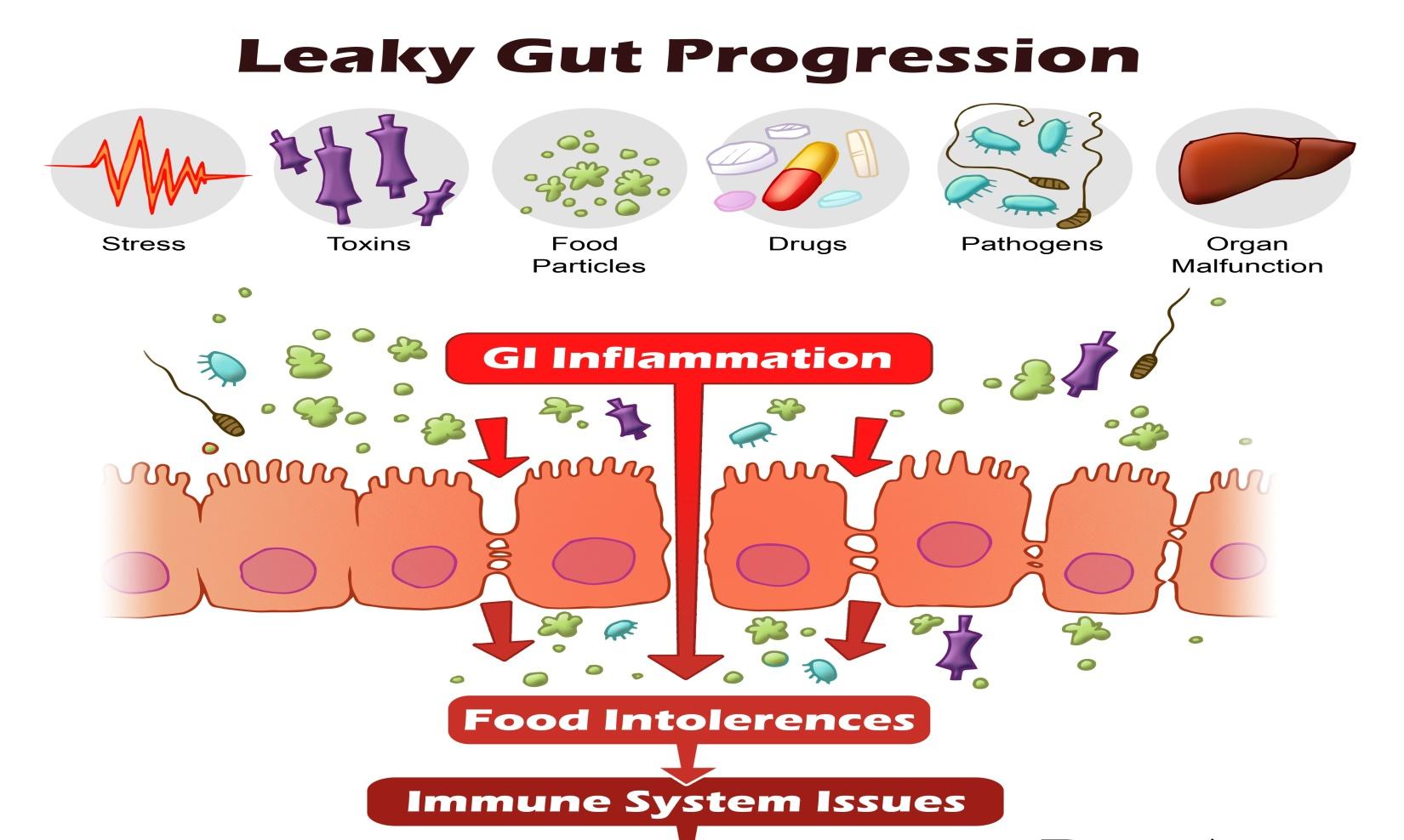gluten sensitivity e gliadina