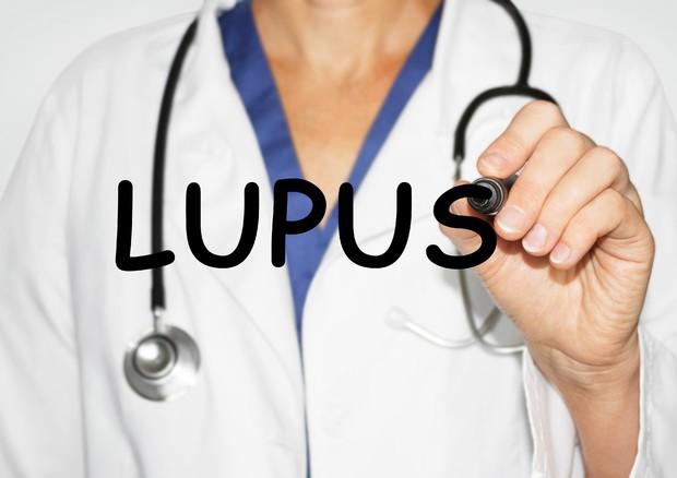 lupus sistemico eritematoso